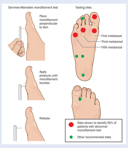 Identifying And Treating Foot Ulcers In Patients With Diabetes Saving Feet Legs And Lives Journal Of Wound Care